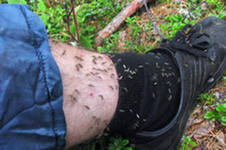 Около 300 укусов клещами зарегистрировано в Рязанской области